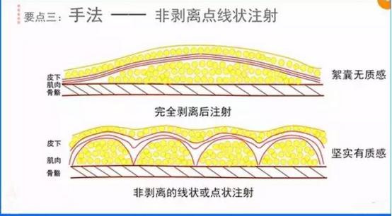 早期的Coleman技术是将脂肪填充到皮下层
