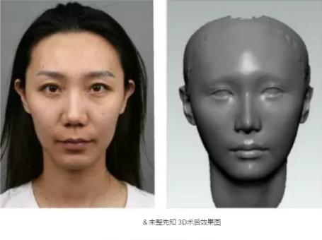 为变温柔做整形,全脸设计自己来