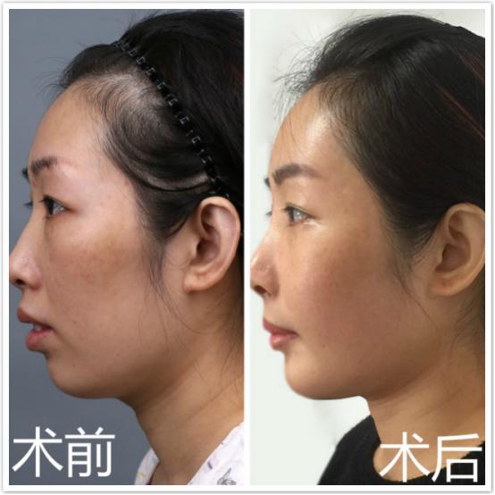 明郑楚蓉教授分享:嘴凸的女人如何变身侧颜杀