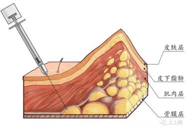 小手术、大效果-自体脂肪移植的ART技术