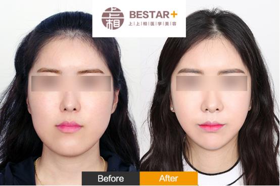 全脸脂肪填充多久恢复