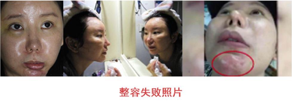 隆鼻多少钱?北京隆鼻价格