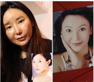 女子赴韩整容失败,面部严重变形
